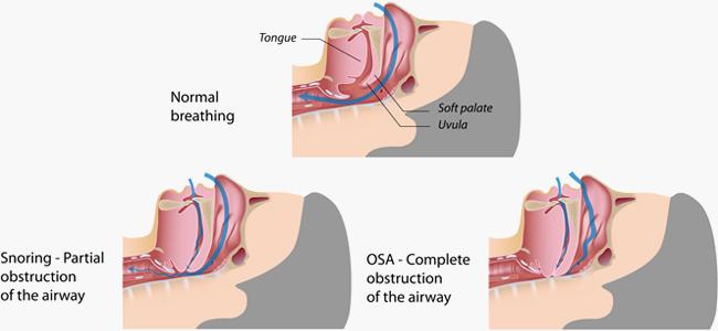 anti-snoring