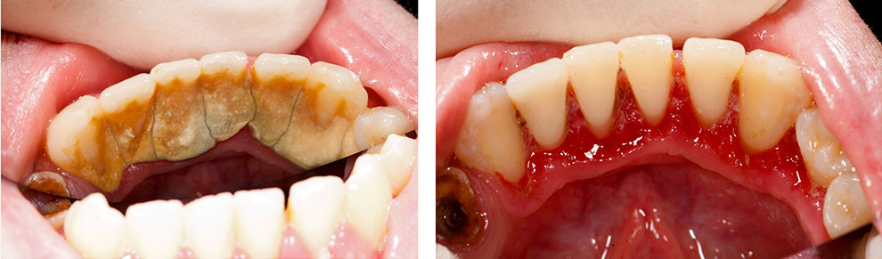 how to get rid of dental tartar at home